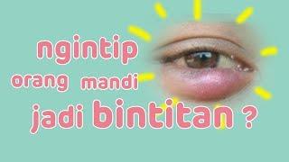 Bintitan, Infeksi Mata yang Membuat Penderitanya Mengalami Benjolan Kecil di Luar Kelopak Mata.