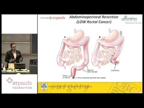 Colon Cancer Education Forum - Surgeon Presentation