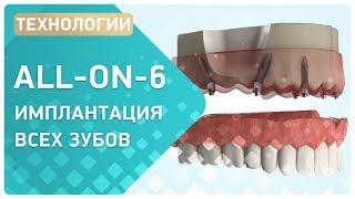 Имплантация зубов ALL-ON-6 при атрофии костной ткани(, 2016-11-03T08:56:11.000Z)