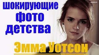 💥 Эмма Уотсон 🌟 повзрослела ⭐ шокирующие фото детства тогда и сейчас Emma Watson before and after