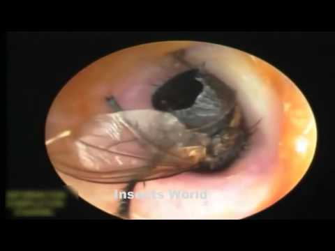 Best Videos Insects inside the human body compilation 2016 HD