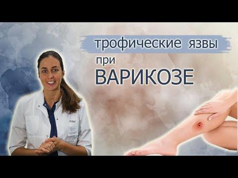 Трофическая язва нижних конечностей. Эффективное лечение.
