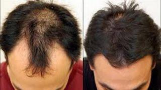PERLU DIKETAHUI!! 10 Cara Menumbuhkan Rambut Botak dengan Cepat Secara Alami