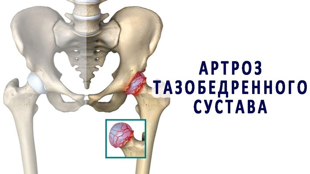 Асептическое воспаление тазобедренного сустава воспалительные процесы в суставах