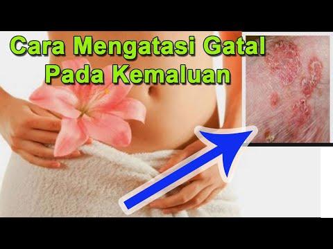 Penyebab Gatal Pada Kemaluan Wanita Dan Cara Mengatasinya KONSULTASI ==WA : 083869517802===....