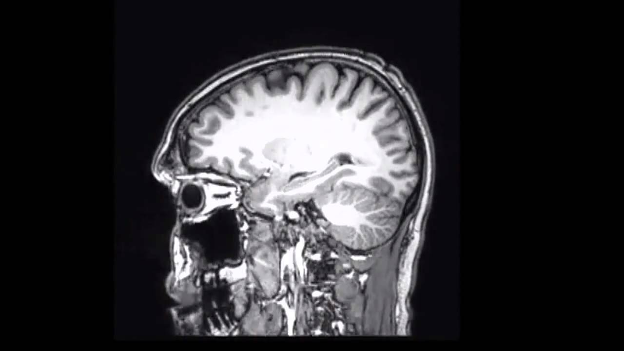 Human brain mri study youtube human brain mri study ccuart Choice Image