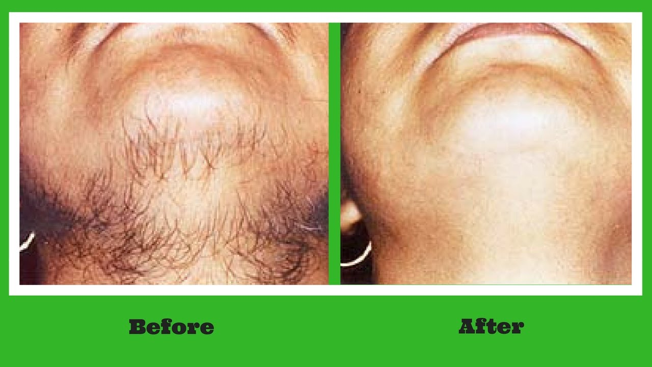 Permanent Hair Removal At Home Ayurvedic Remedy To Get Rid Off Unwanted Facial Hair Youtube