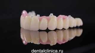 CAD модель, изготовление и протезирование зубов на имплантах European Clinic Dentistry(Клиника эстетической стоматологии European Clinic of Aesthetic Dentistry Eiffel Medical Center Dentist http://dentalclinica.ru и имплантации в Будап..., 2014-04-04T19:06:53.000Z)