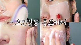 초 민감성 피부의 홍조 대비 피부관리 (천연비누 소소한…
