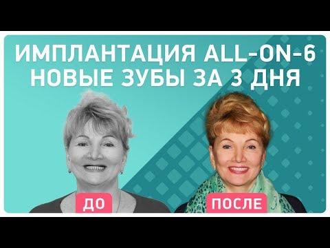 Одноэтапная и двухэтапная имплантация зубов в СПб: цены