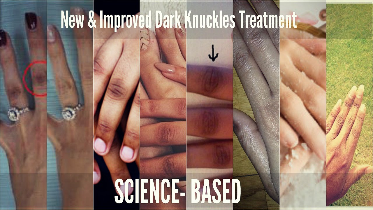 dark knuckles treatment