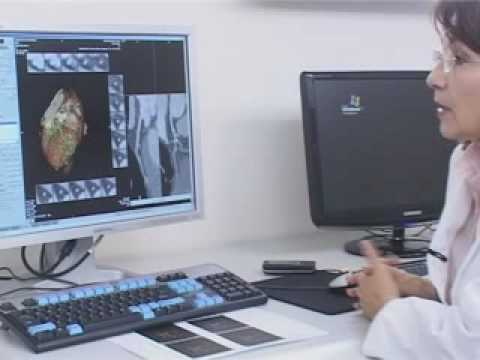 Multislajs skenerska koronarografija