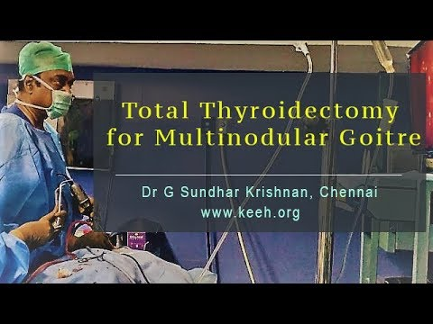 Total thyroidectomy for multinodular goitre