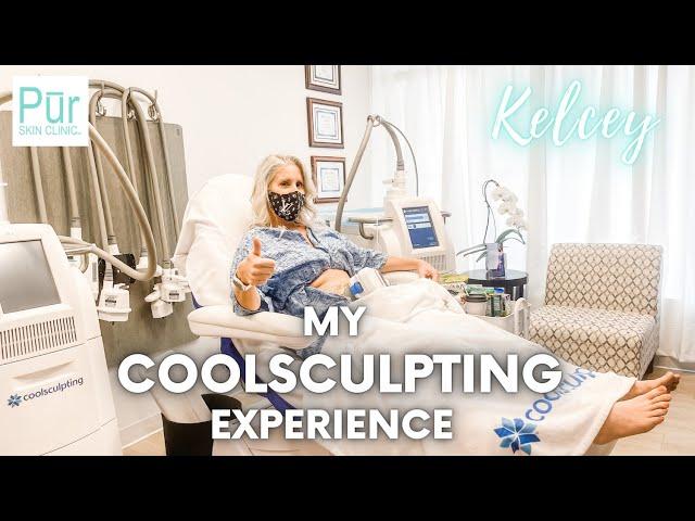 My COOLSCULPTING EXPERIENCE | Full Abdomen Treatment | PUR Skin Clinic