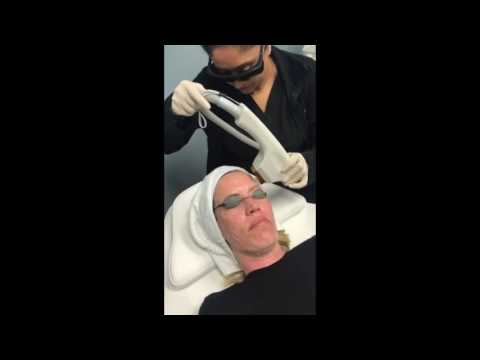 Sciton BBL PhotoFacial for Rosacea and Sun and Age Spots