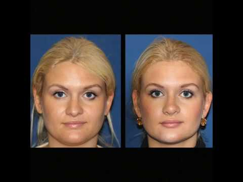 Nose Hump Removal & Tip Rotation Rhinoplasty Surgery by Beverly Hills Plastic Surgeon Dr. Keyes
