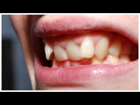 Неправильный прикус зубов у взрослых