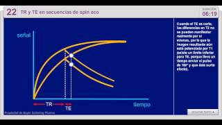 Download 22  TR Y TE EN SECUENCIAS DE SPIN ECO