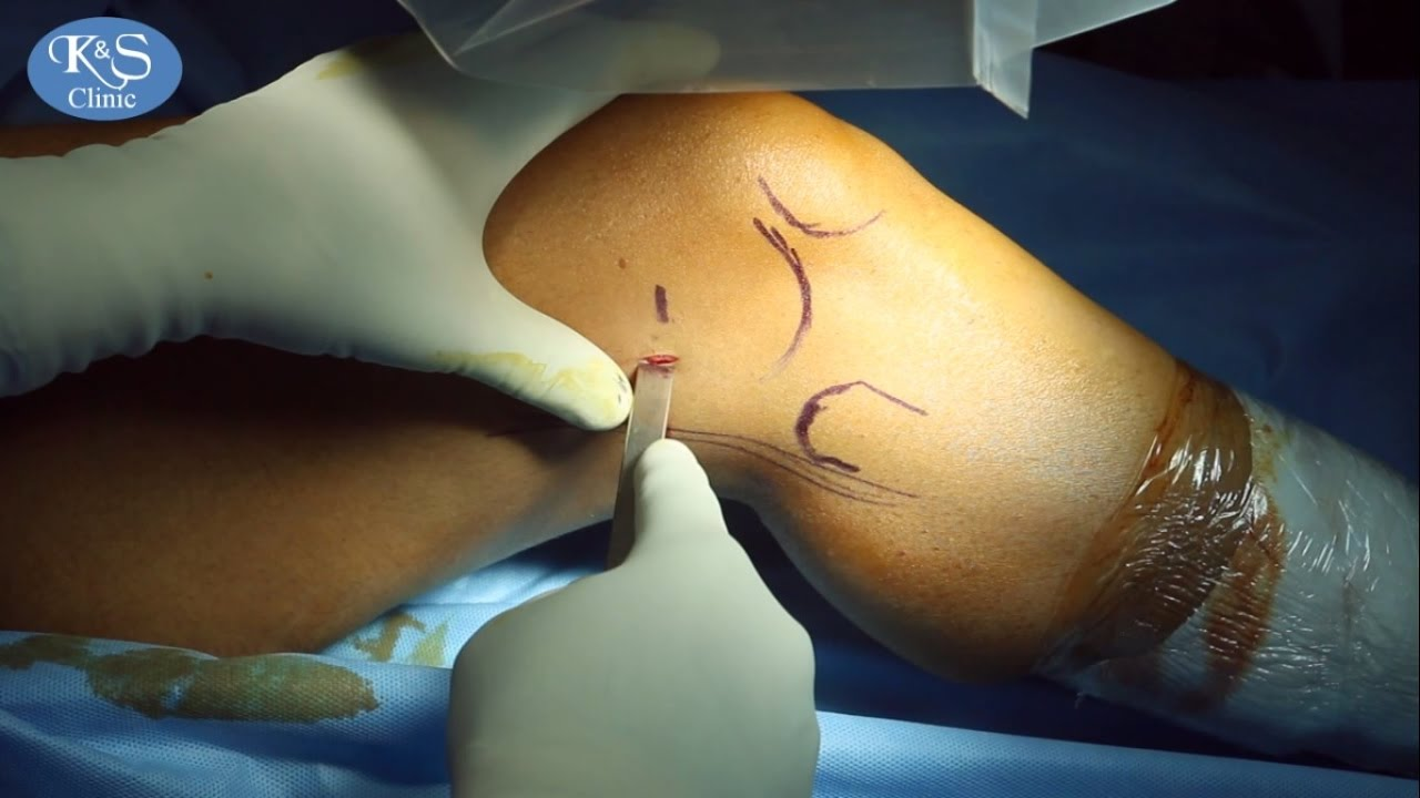What is a knee replacement surgery?