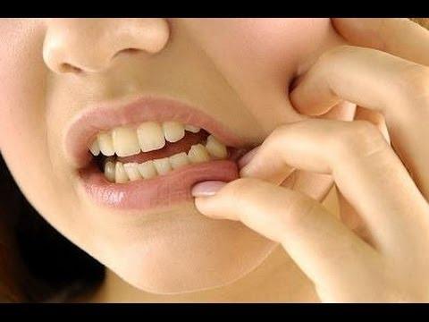 كيفية السيطرة على ألم الأسنان ليلا ما هو علاج ألم الأسنان كيف تسيطر على ألم الأسنان Youtube