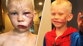 Boy Who Saved Sister in Dog Attack Gets Call from Spider-Man