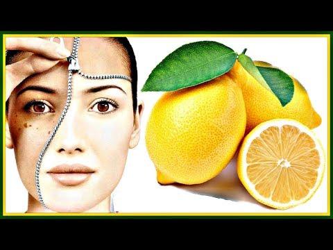 ЛИМОН от пигментных ПЯТЕН. Четыре ЭФФЕКТИВНЫХ рецепта с лимоном от ПИГМЕНТАЦИИ и веснушек.