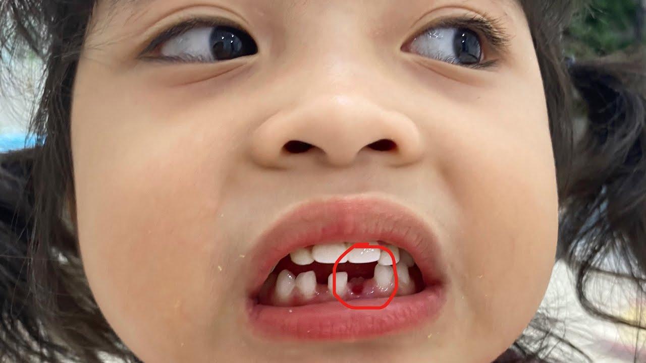 น้องใยไหม ฟันหัก!!!!