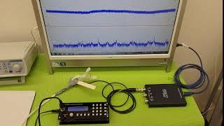 <メガヘルツ>の超音波発振制御技術 ultrasonic-labo 超音波システム研究所 thumbnail