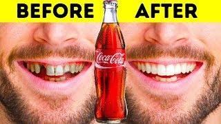 22 MUST-KNOW TEETH HACKS