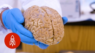 The harvard brain bank is one of largest facilities its kind in country. with over 5,000 brains, facility provides an incredibly important res...