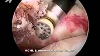 Arthroscopic Capsular Release for Frozen Shoulder