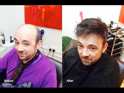Men S Hair Replacement Hair Wigs Hair Toupees Hair