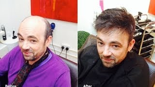 Men's Hair Replacement - Hair Wigs, Hair Toupees, Hair systems, Hairloss