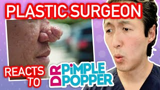 Plastic Surgeon Reacts to DR. PIMPLE POPPER! - Rhinophyma Nose - Dr. Anthony Youn