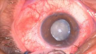 Post traumatic cataract Lukan Mishev Live Stream