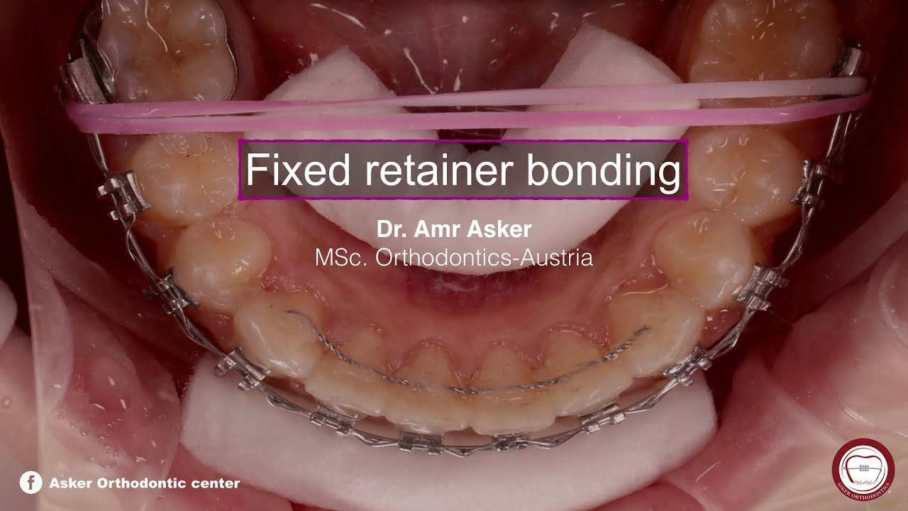 fixed permanent retainer bonding in orthodontics by dr  Amr asker