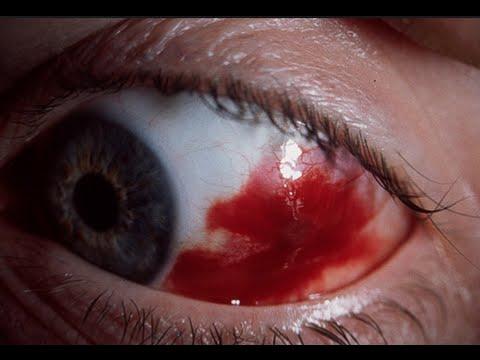 Como curar un coagulo de sangre en el ojo