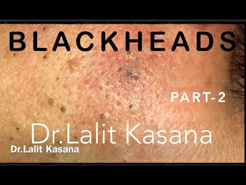 BLACKHEAD REMOVAL PART-2 by Dr Lalit Kasana
