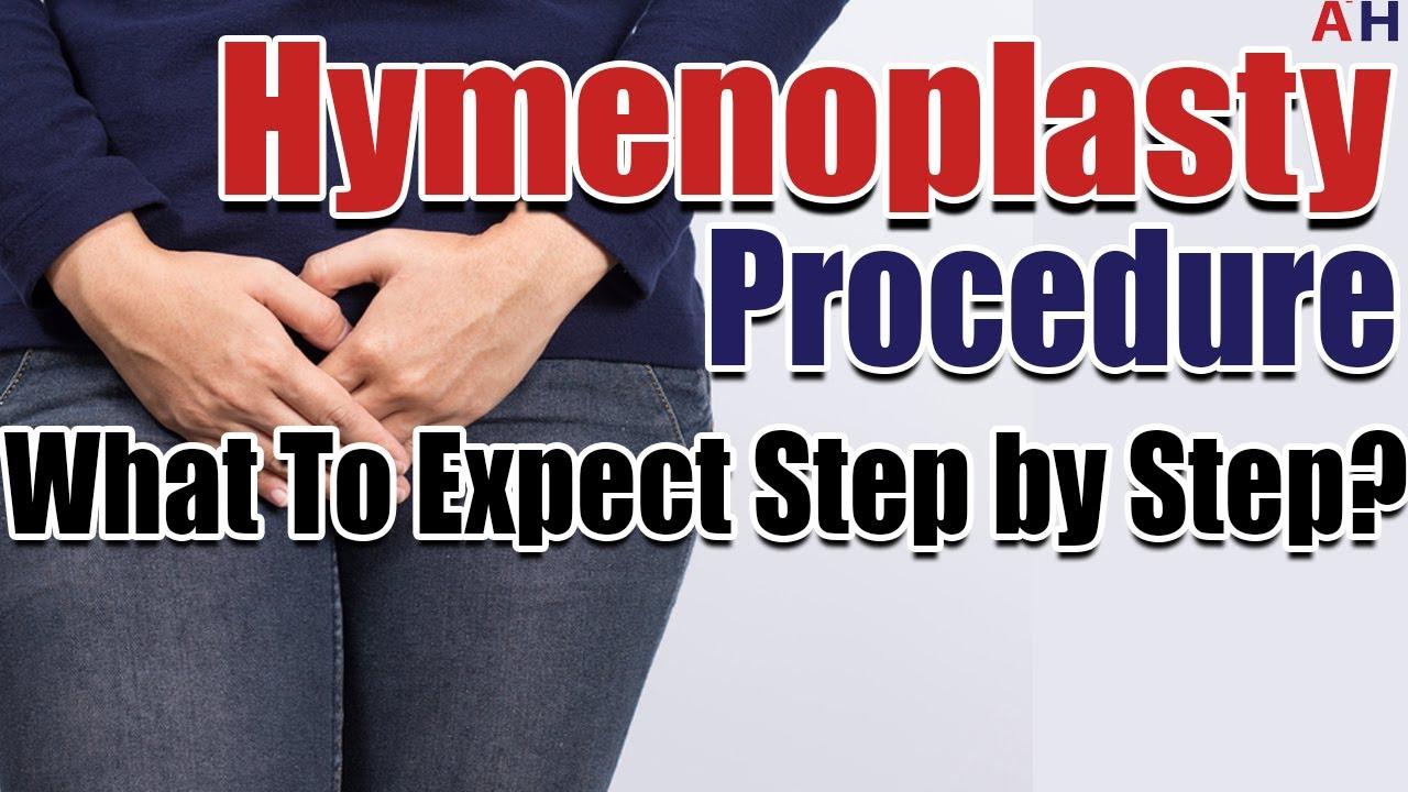 HYMENOPLASTY PROCEDURE EBOOK