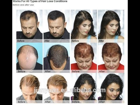 BEST HERBAL OIL FOR HAIR GROWTH FOR BOTH MEN AND WOMEN   INCREDIBLE GROWTH!!!!!