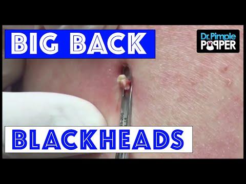 Big. Back. Blackheads - YouTube
