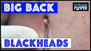 Repeat youtube video Big. Back. Blackheads