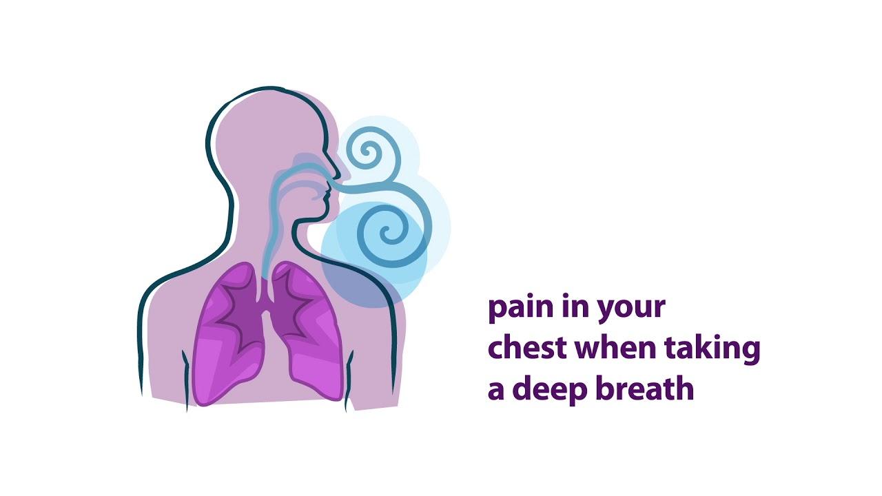 Lupus Symptoms   Lupus Foundation of America