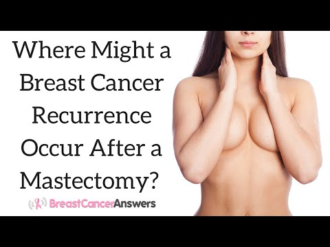 Where Might a Breast Cancer Recurrence Occur After a Mastectomy?
