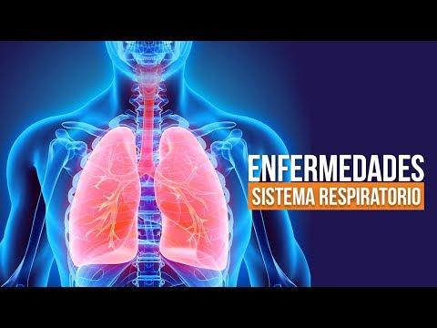 ENFERMEDADES DEL SISTEMA RESPIRATORIO: Causas, Síntomas y Tratamientos