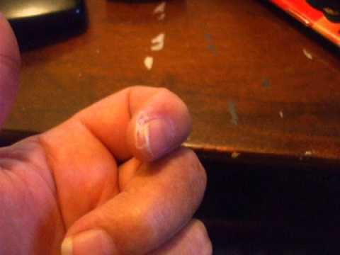 WHITLOW infection of the tip of the finger - YouTube