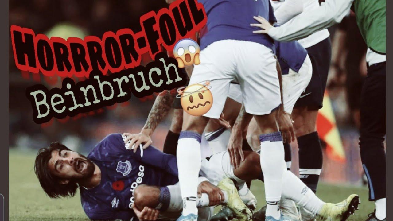 Son Heung Min Steht Immer Noch Unter Schock Horror Foul Verletzung Beinbruch Everton Tottenham