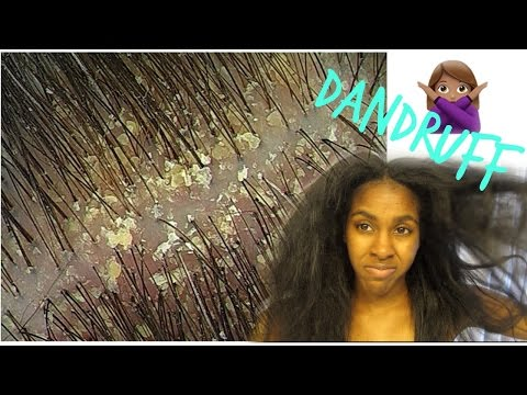 HOW TO| Get Rid of Dandruff, Itch & Dry Scalp!