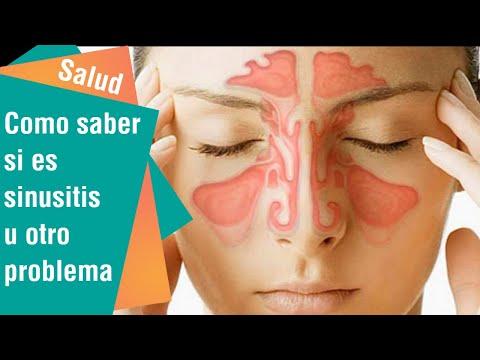 Cómo saber si es sinusitis u otro problema