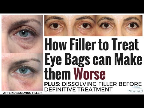 How Under Eye Fillers can Make Prominent Eye Bags Worse, and Safely Dissolving Filler